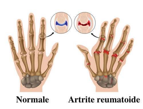 Artrita reumatoida: 7 sfaturi pentru ameliorarea acesteia