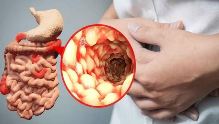 Boala Crohn – Simptome, cauze si tratament