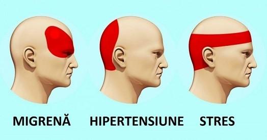 Totul despre durerea de cap. Afla care sunt simptomele si remediile de ameliorare