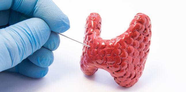Glanda tiroida: ce este, cum functioneaza, simptome, tratament si cauzele dereglarii