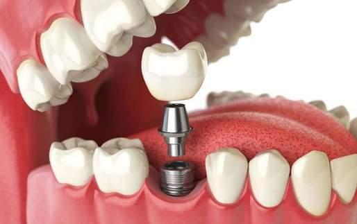 Care sunt avantajele unui implant dentar?