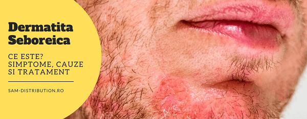 Dermatita seboreica: Ce este? Simptome, cauze si tratament