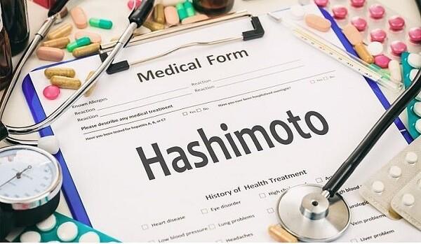 Tiroida Hashimoto: ce este? Cauze, simptome si alimentatie