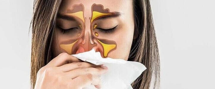 Rinita alergica - simptome si tratament naturist
